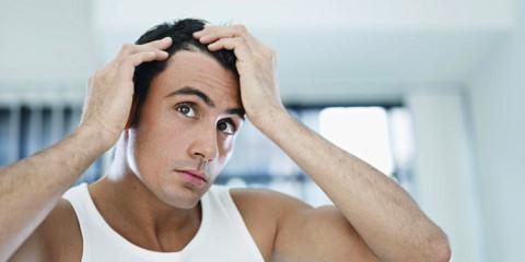 Cuatro factores que facilitan la caída del cabello